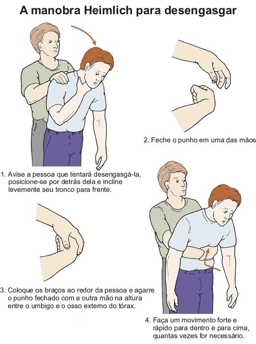 Manobra de Heimlich em maiores de 1 ano