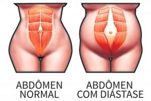 Diastase Abdominal Pos Gravidez 3