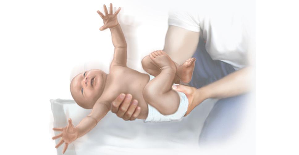 Reflexo de Moro ou Reflexo do Susto nos Bebês