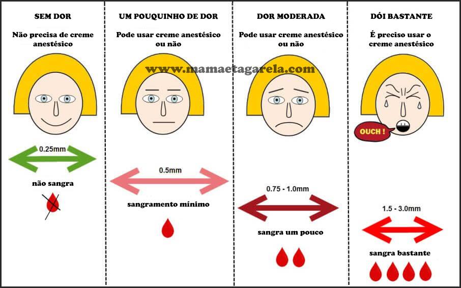 microagulhamento com derma roller sangramento
