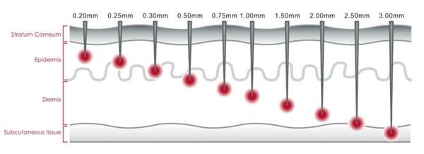 microagulhamento derma roller camadas da pele