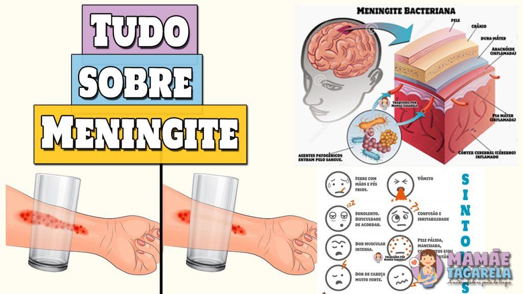 meningite sintomas de meningite vacinas de meningite como evitar pegar meningite